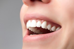 Perfekte Zähne dank Füllung